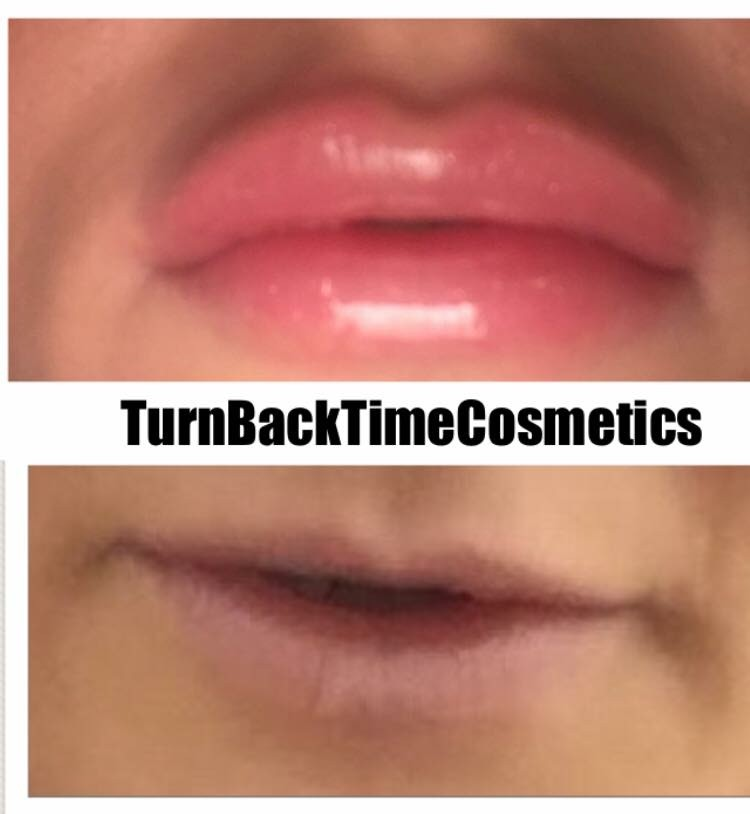 Lip Injections - Turn Back Time Cosmetics